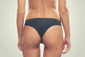 woman with surgery marks with brazilian butt lift surgery