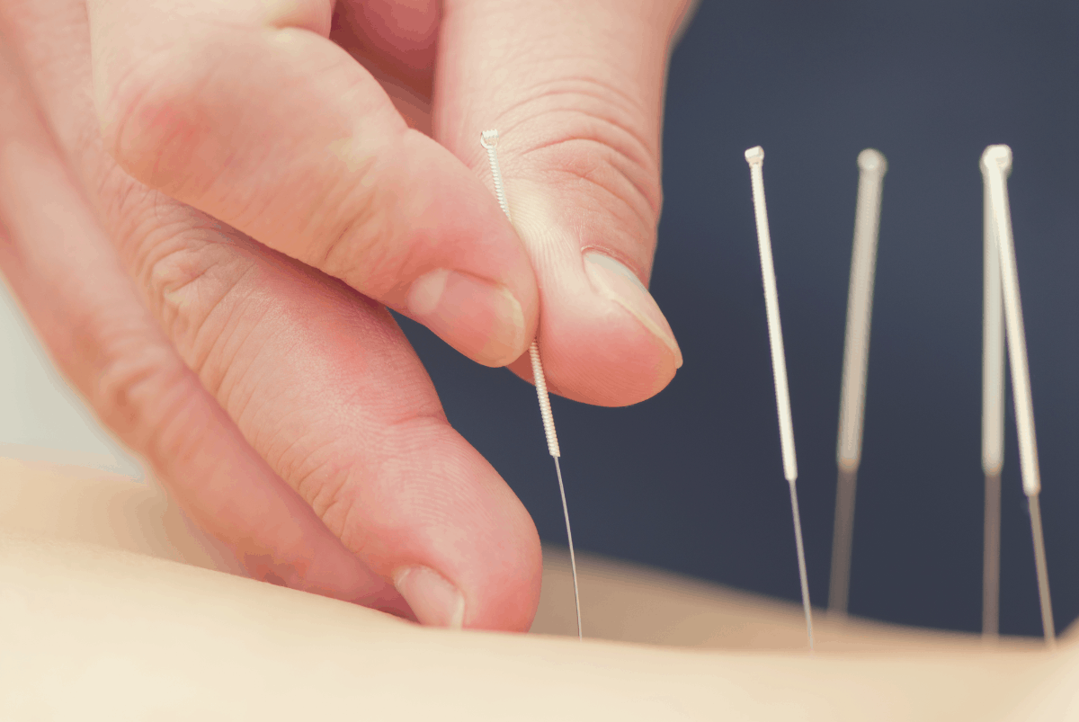 patient undergoing acupuncture