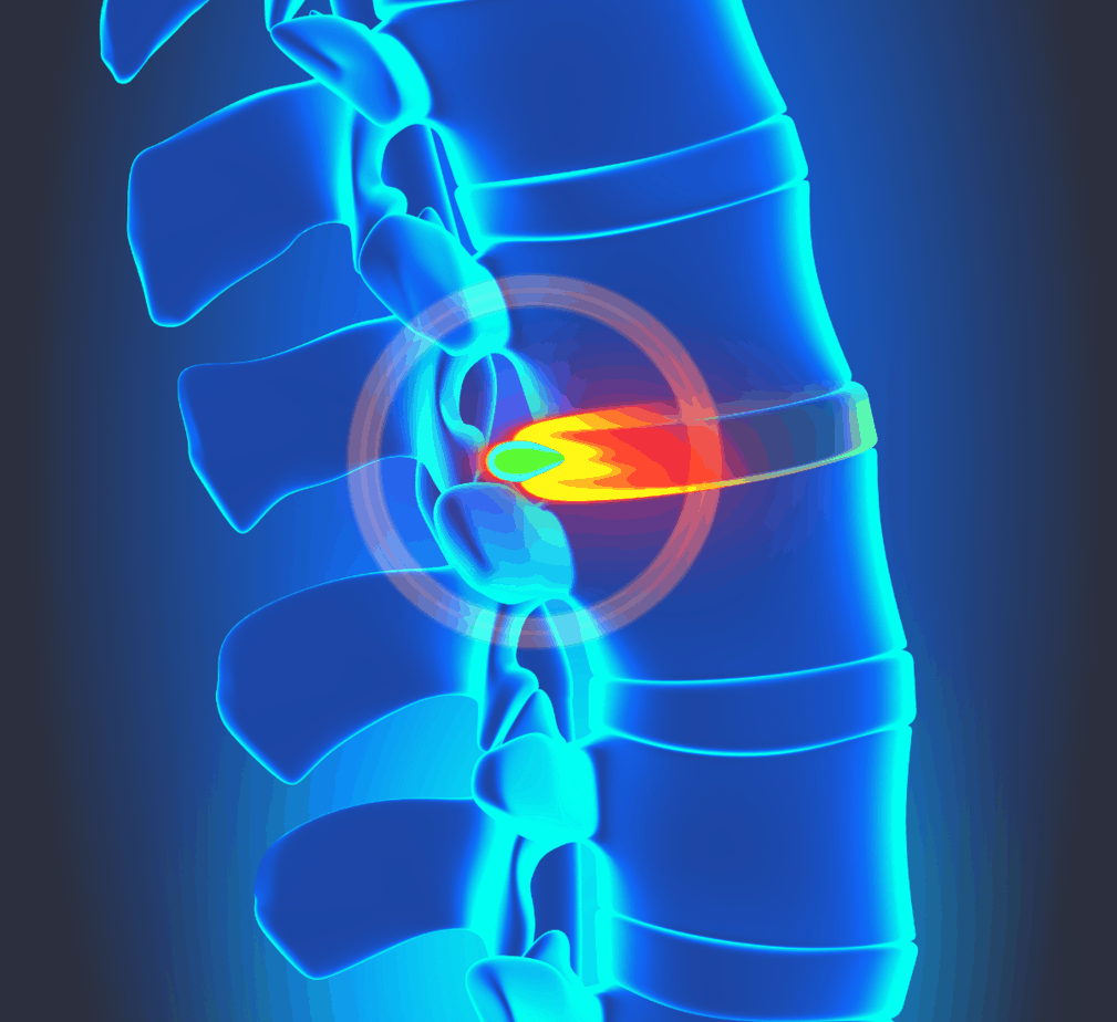 graphic illustration of a herniated disc