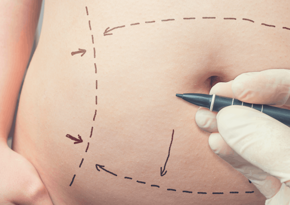 surgery drawings on a patient's tummy